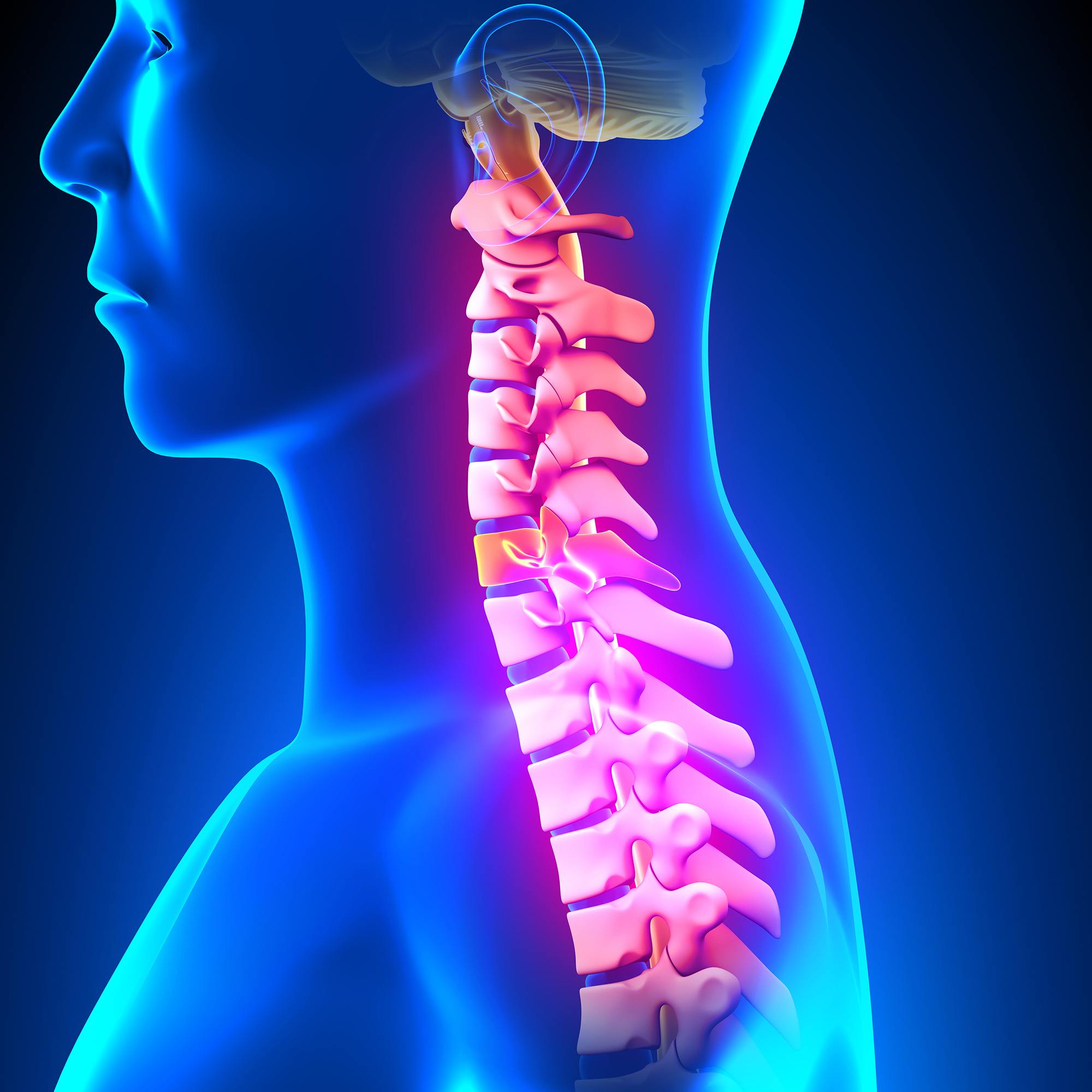Neck Pain caused by Auto Accident